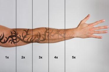 tetovalas-eltavolitas-5